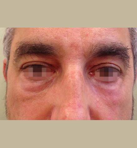 Después Tratamiento de medicina estética realizado en las Clínicas Revitae para la eliminación de xantelasmas con láser de CO2. Imágenes del Antes y Después. Paciente 6.
