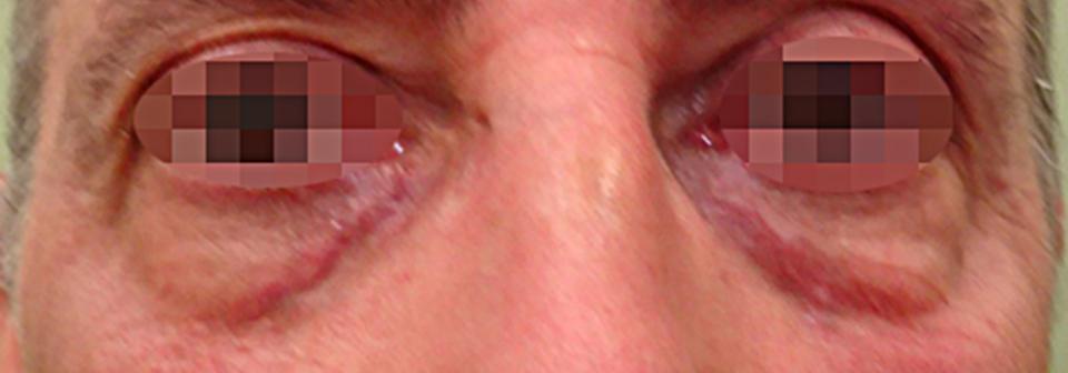 Después Tratamiento de medicina estética realizado en las Clínicas Revitae para la eliminación de xantelasmas con láser de CO2. Imágenes del Antes y Después. Paciente 4.