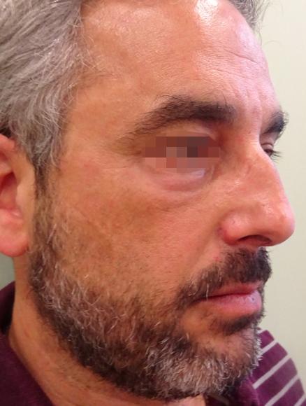 Después Tratamiento de medicina estética realizado en las Clínicas Revitae para la eliminación de xantelasmas con láser de CO2. Imágenes del Antes y Después. Paciente 2.