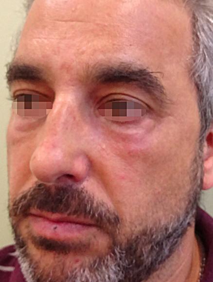 Después Tratamiento de medicina estética realizado en las Clínicas Revitae para la eliminación de xantelasmas con láser de CO2. Imágenes del Antes y Después. Paciente 1.