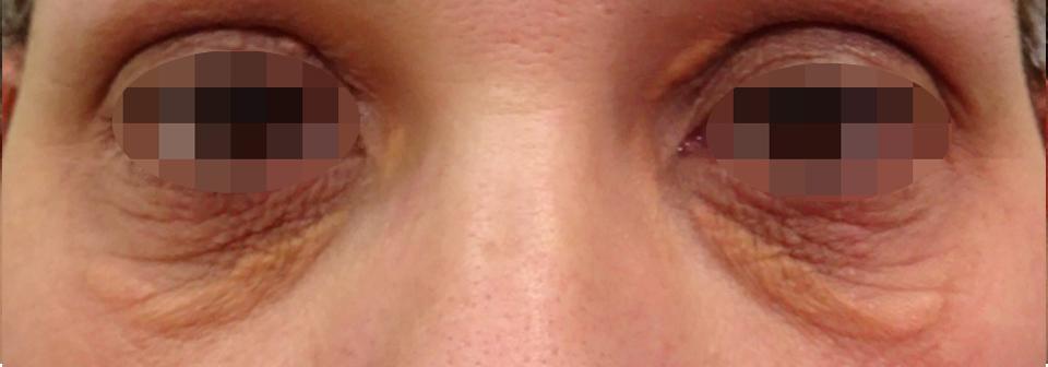 Antes de Cirugía estética de Xantelasma