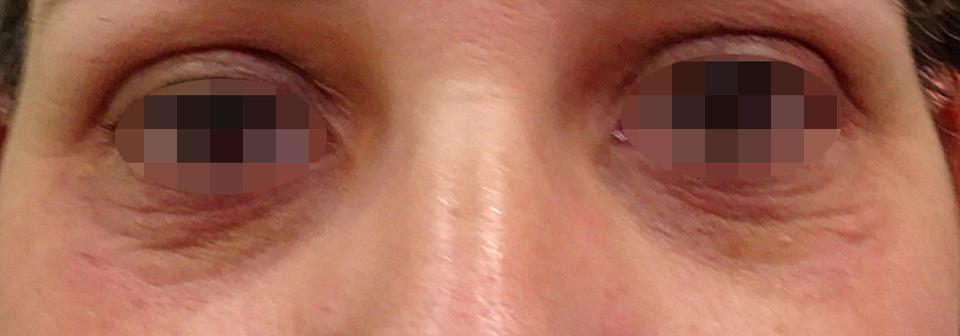 Después Tratamiento de medicina estética realizado en las Clínicas Revitae para la eliminación de xantelasmas con láser de CO2. Imágenes del Antes y Después. Paciente 3.