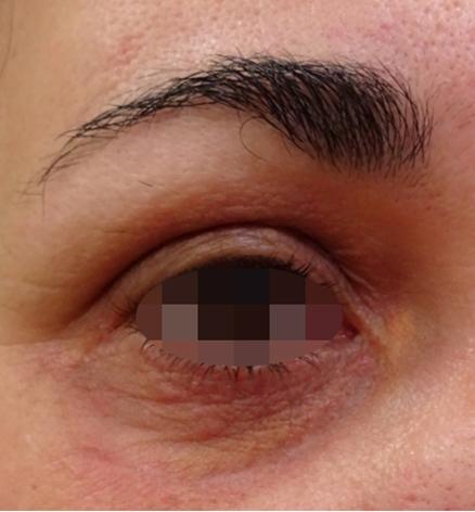 Después Tratamiento de medicina estética realizado en las Clínicas Revitae para la eliminación de xantelasmas con láser de CO2. Imágenes del Antes y Después. Paciente 5.